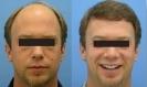 زراعة الشعر الطبیعی