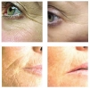 تجديد الجلد بالليزر ( تجدید الشباب )